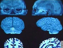 One study found physical differences between the brains of those who work out and those who don't.