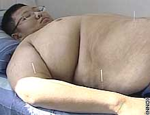 The clinic says acupuncture helps reduce appetite and improve metabolism.